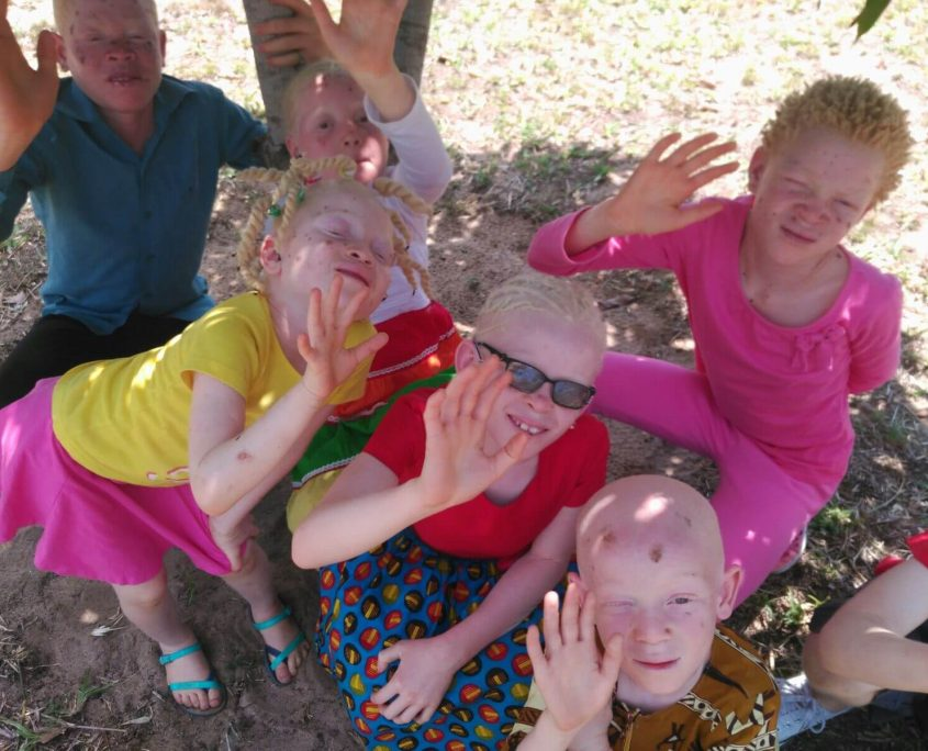 Niños con albinismo en Mozambique